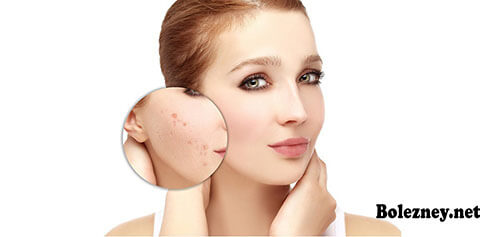 Причин возникновения, признаки и лечение подкожного клеща на лице