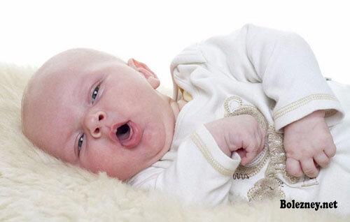 Признаки клебсиеллы у грудного ребенка