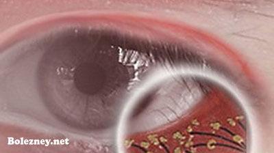 Способы диагностикиресничного паразита