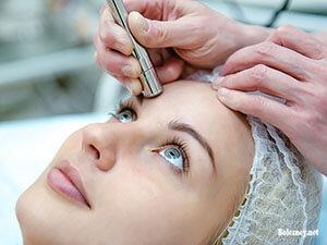 Косметологические процедуры при демодекозе лица