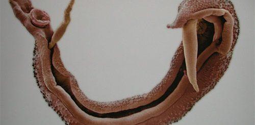 Шистосомы в организме человека. Виды, признаки и лечение