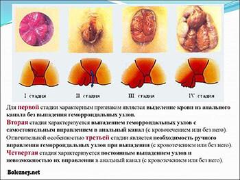 Заболевания прямой кишки