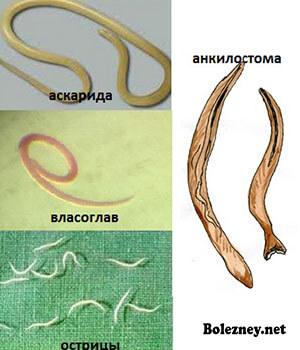 Применение препарата Вермокс при различных заболеваниях