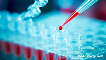 Метод диагностики ПЦР при обнаружении Бластоцист