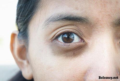 Причины и способы устранения синяков под глазами